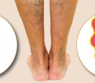 a bal láb visszér kezelése)