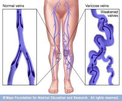 Alsó végtagok varikózisai szamarában Az alsó végtagok varikózisát kezeljük