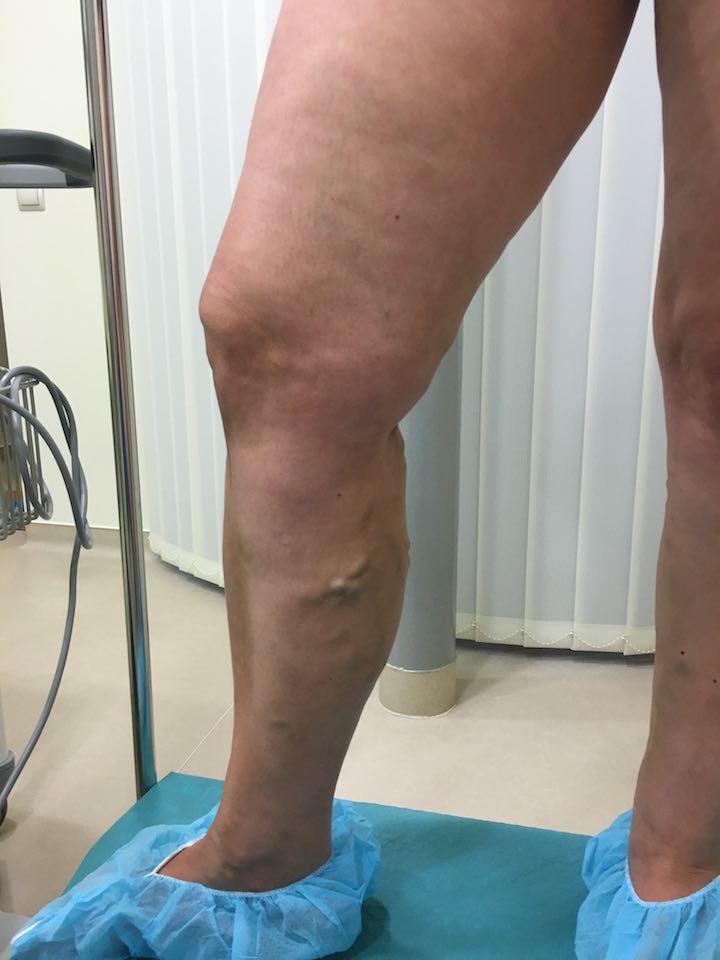 fotó a visszér kezelése előtt és után