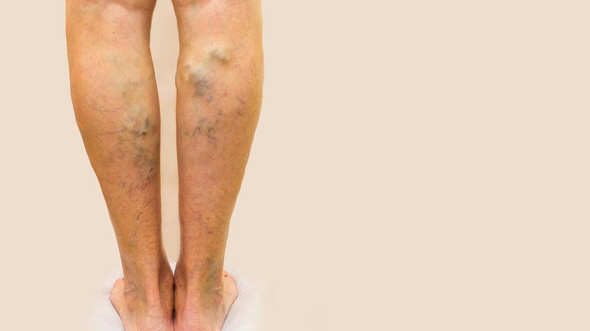 visszér kék lábak hogyan kell kezelni