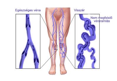 hogyan kell kezelni a visszereket az alsó lábszáron