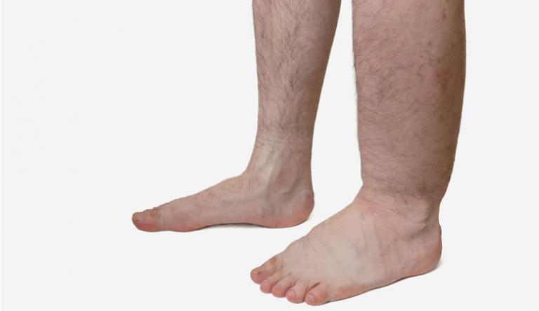 a lábak enyhe visszértágulata