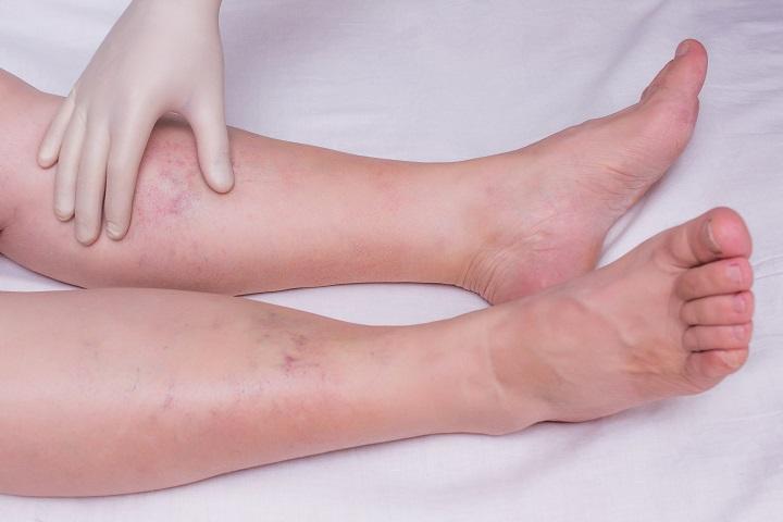 kezelje a lábfájást visszérrel