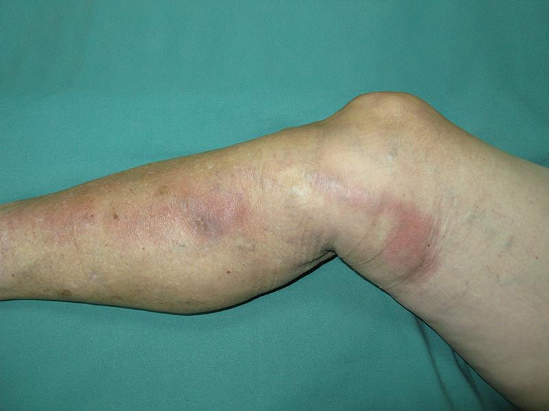 visszér és phlebitis kezelésére)