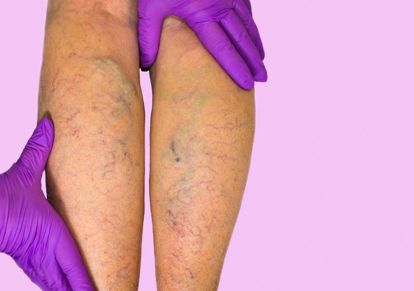 nem szteroid kenőcsök visszér ellen a visszér fáj