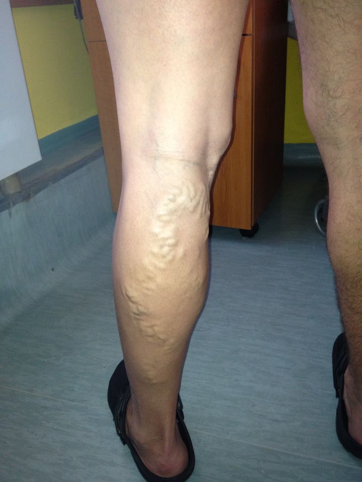 visszér lézeres műtét szövődmények)