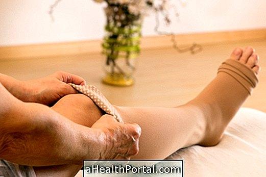 a varikózistól duzzadt láb és fáj