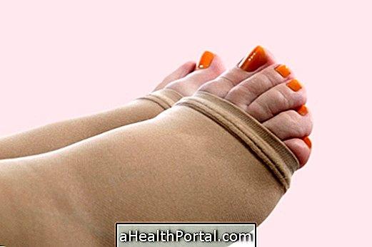 hogy működik a varikózis a lábakon