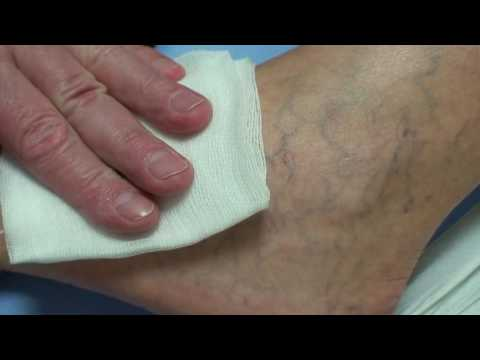 visszér fogyatékosság kiürítése a lába feketévé válik a varikózus vénákkal mit kell tennie