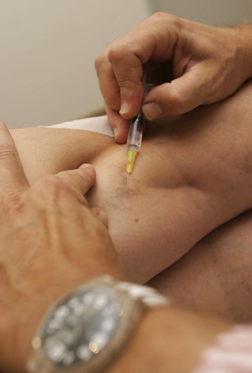 visszérrel mit csinálnak az injekciók)
