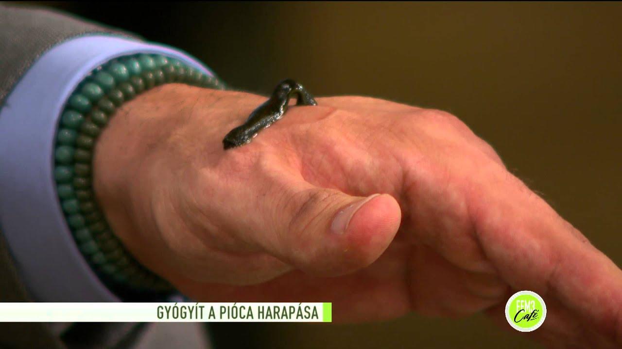 piócák a kéz visszerére)