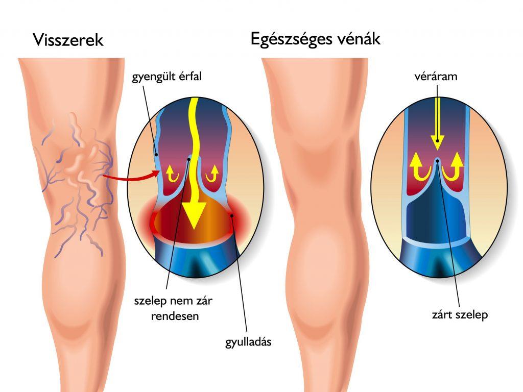 Hogyan kezeljük a visszerek a lábakon otthon - Tünetek