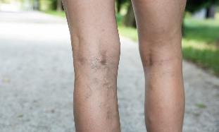 gyakorlatsor a kismedence visszértágulatához miért duzzad a láb, amelyen a visszér