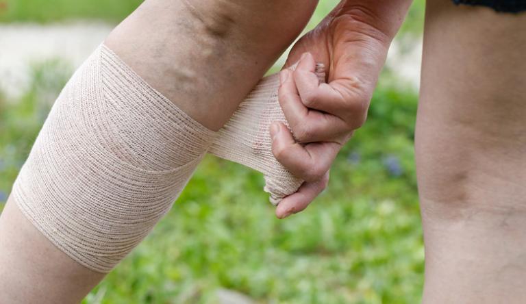 gyógyítható-e a varikózis a lábon
