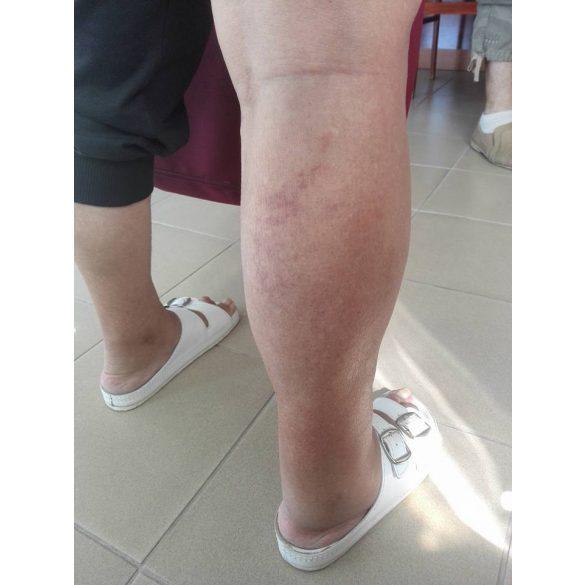 Krém a lábak varikozmusához a terhesség alatt