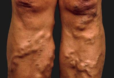 diéta műtét után visszerek a lábakon