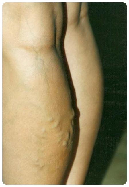 Visszérgyógyászat, Visszér műtét - hagyományos - Visszérgyógyász