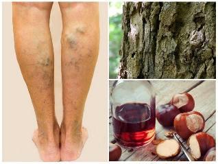 visszér a lábakon gesztenye kezelés