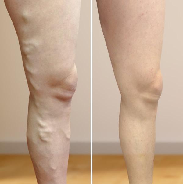 lábak a visszér előtt és után a jodinol visszeres alkalmazása