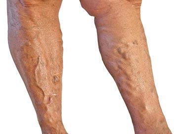 húzza meg a lábak bőrét visszérrel)