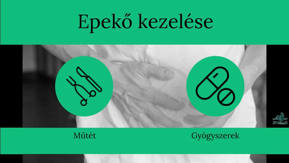 gyógyszer a kismedence visszérgyulladásának kezelésére)