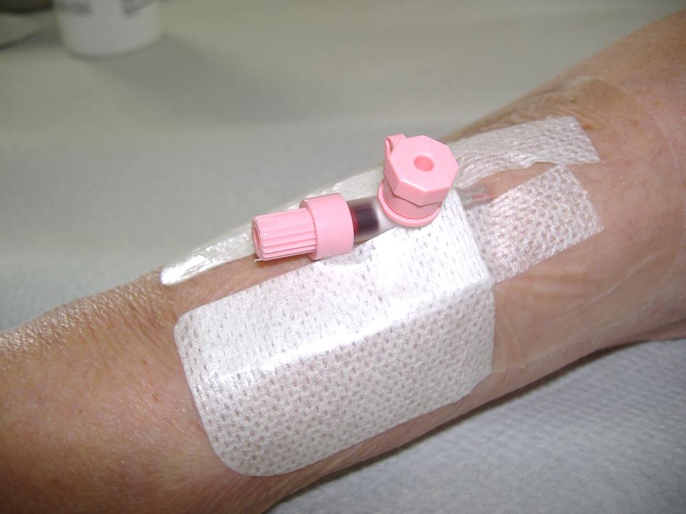 kötszer a lábak varikózisában