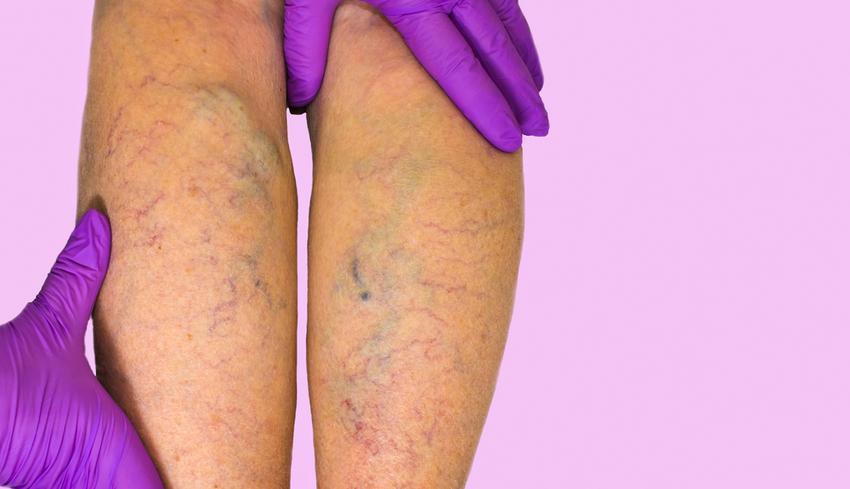 belső visszér a lábak hogyan lehet gyógyítani