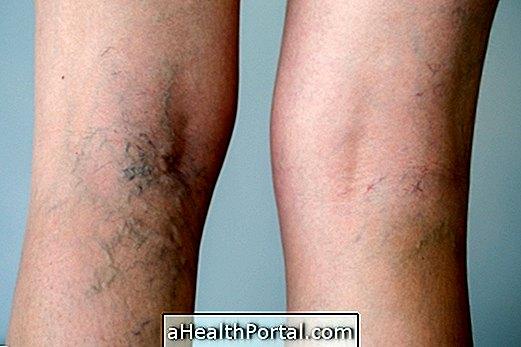 fotó a varikózis a lábak előtt és után