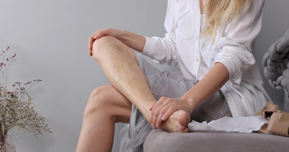 Hirtelen halált is okozhat a fel nem ismert trombózis