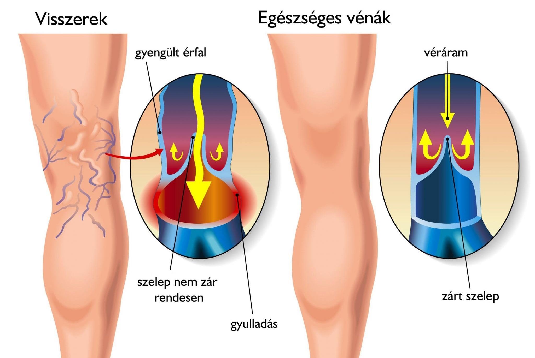 rehabilitáció műtét után a varikózisos lábaknál)