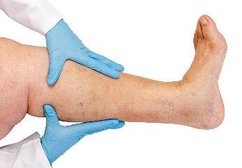 hogyan kezeljük a lábak visszérfájdalmát fájdalommal párolt lábak visszérrel