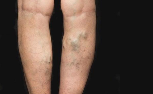 visszér a lábak hogyan kell kezelni, melyik orvos