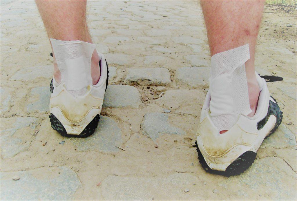 Érzés a lábak varikózisával