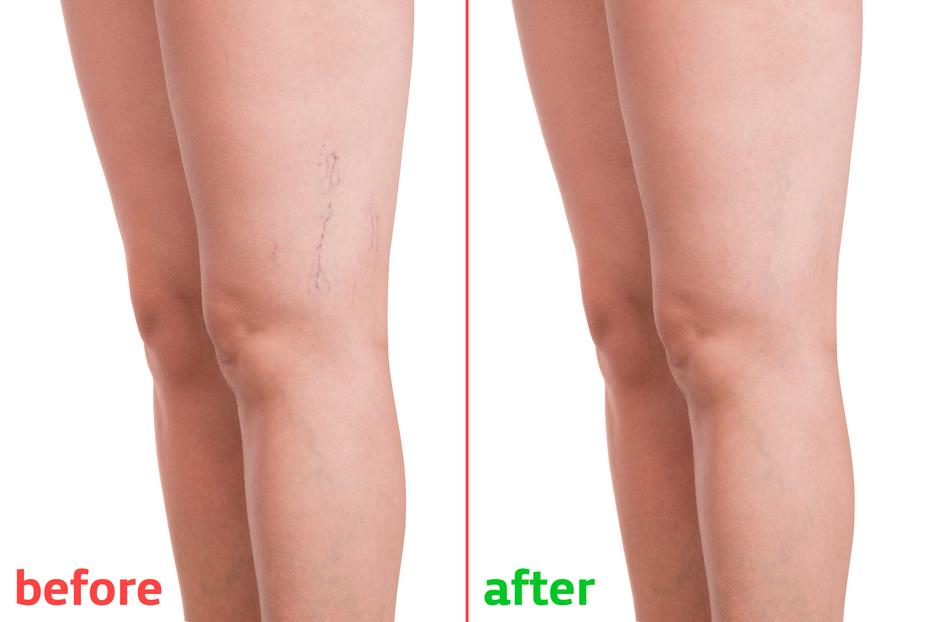 A visszerek lézeres koagulációja a lábakon