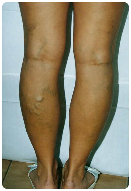 a láb duzzanata visszeres műtét után