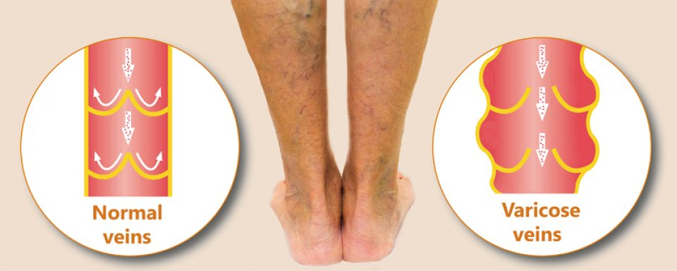 a lábak a visszér miatt fájhatnak)