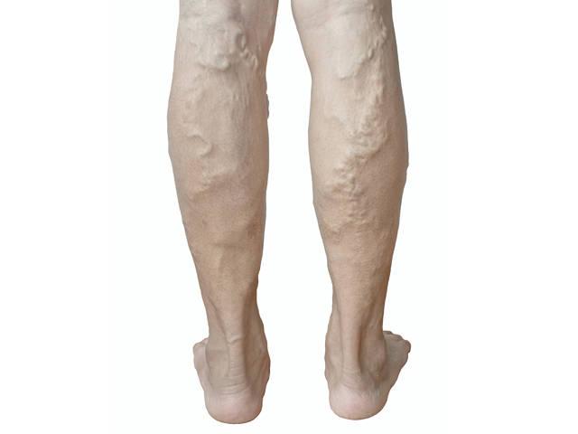 visszérrel a lábak megduzzadnak