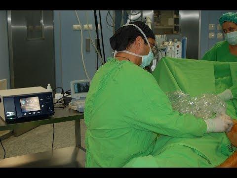 visszérműtét technológia