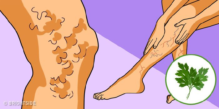 Herbioticum vadgesztenyés lábkrém - ml - VitaminNagyker webáruház