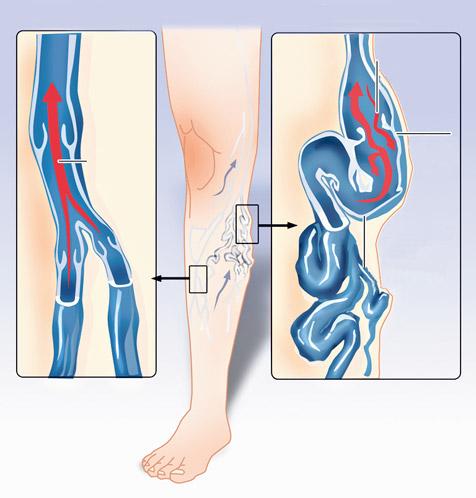 hasznos lé a visszér ellen hogyan kell edzeni a lábakat a varikózisban