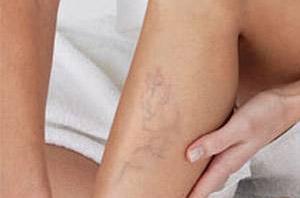 hidzsma a varikózisos lábakon lehetséges-e a visszér kezelése