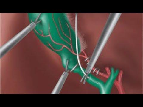 Tömítések prosztata adenoma esetén