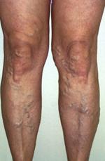 zúzódások a lábakon a visszér miatt