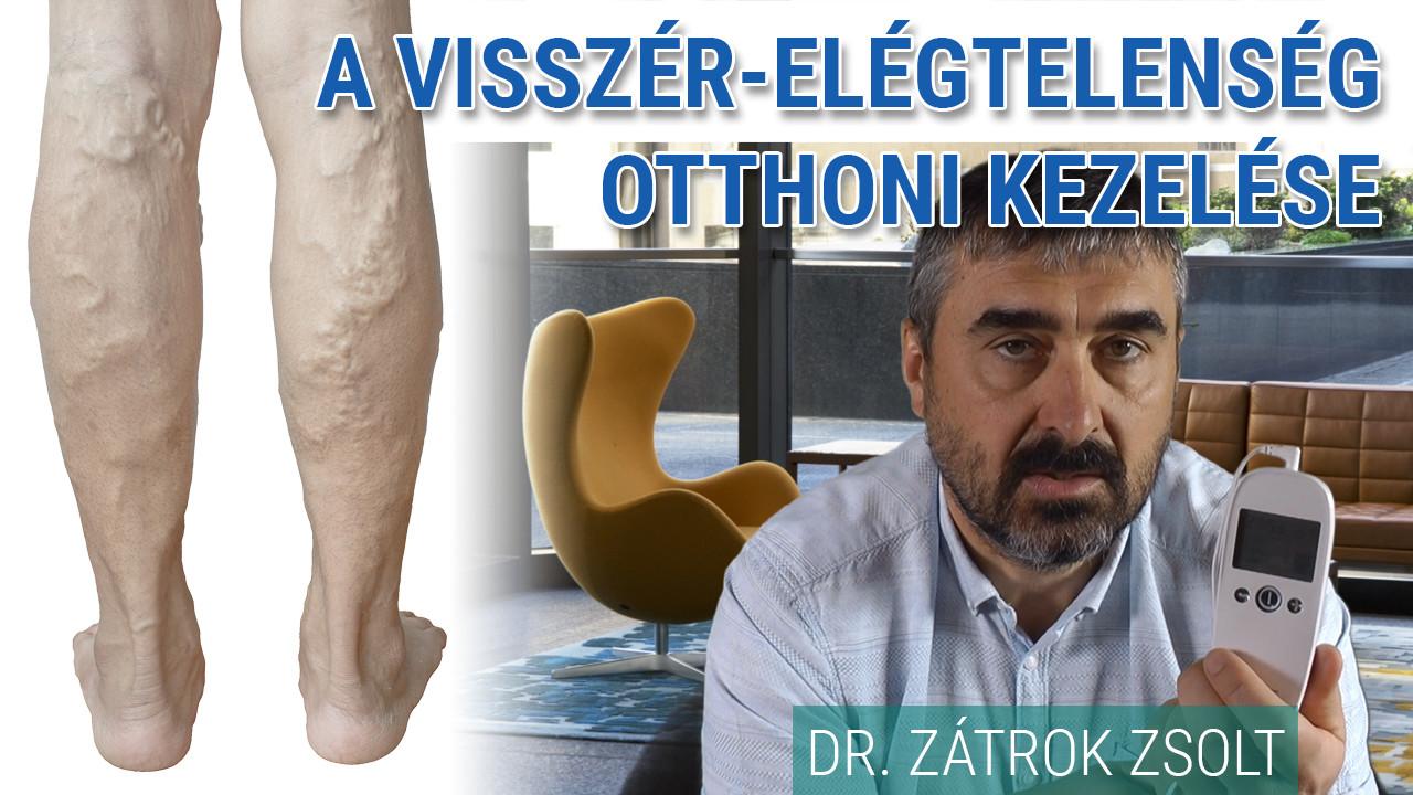 visszér kezelése Ust-Kamenogorskban