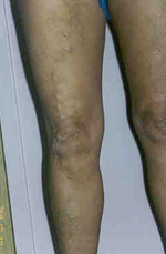 zúzódások a lábakon fotó visszér)