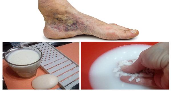 visszeres lábak véraláfutása