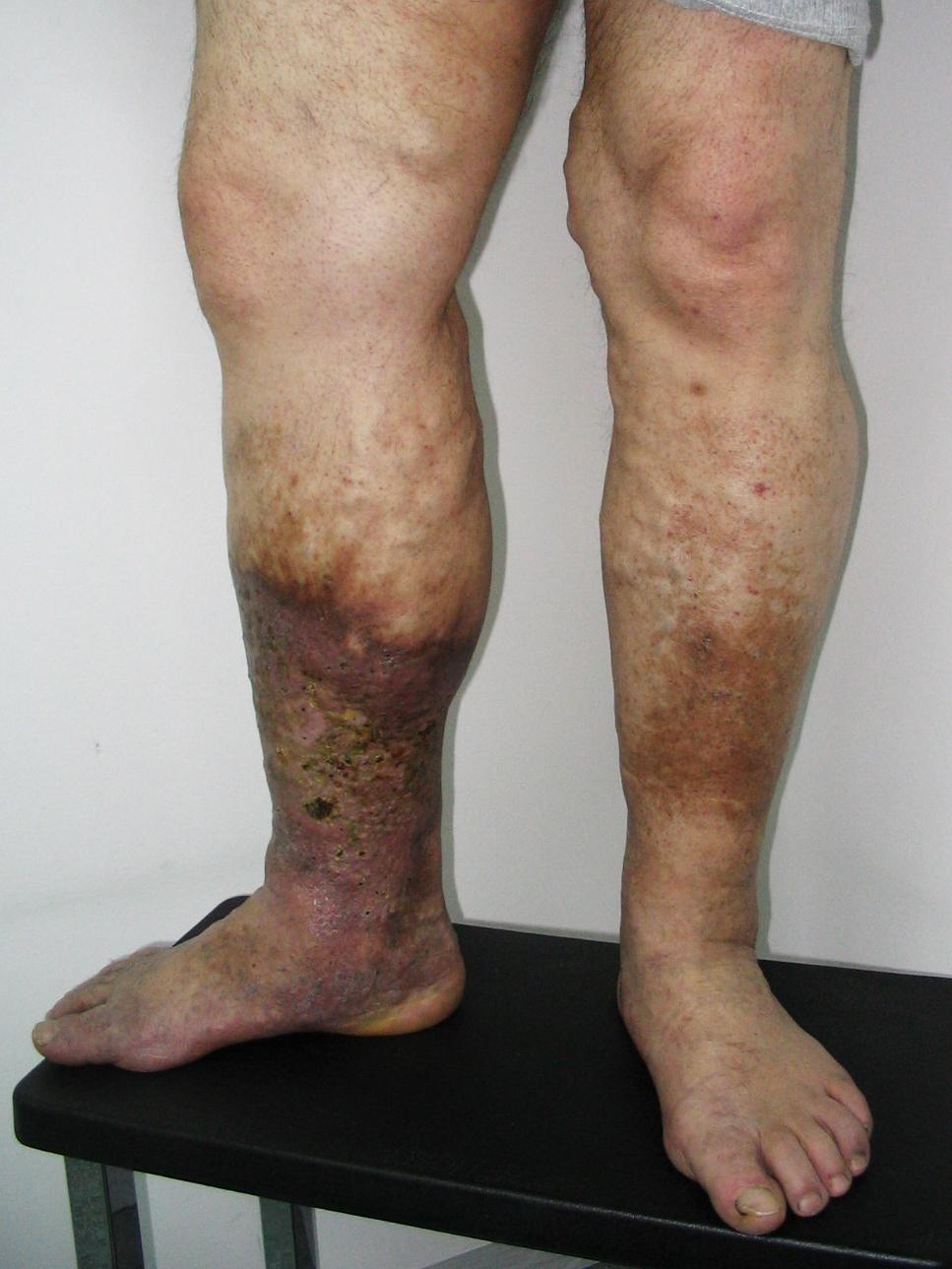 fekélyek kezelése visszeres lábszárral.