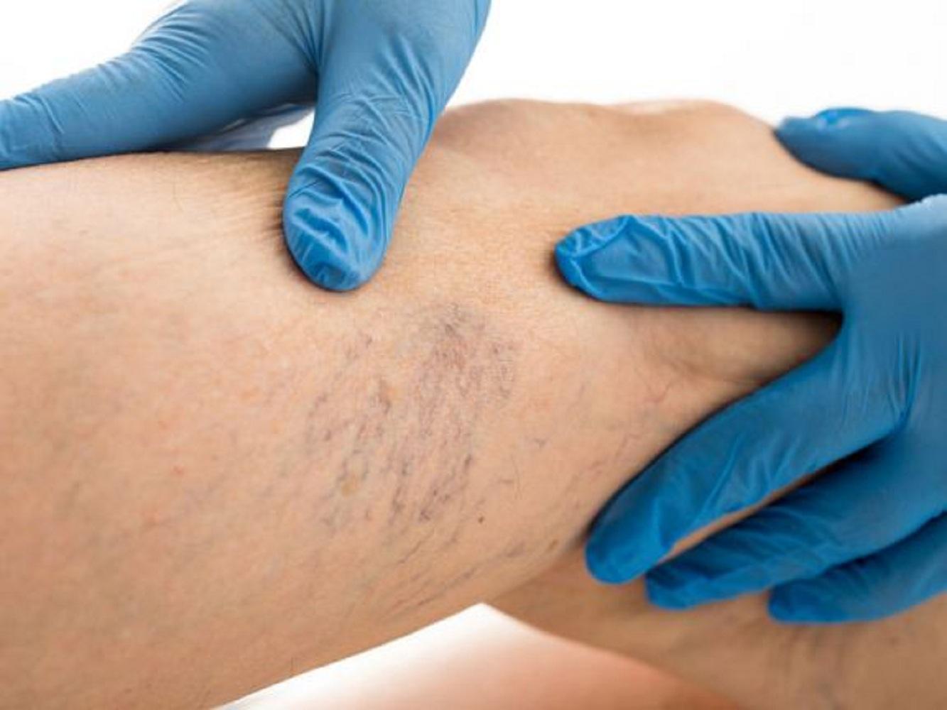 mely orvos kezeli a visszér- és tromboflebitist