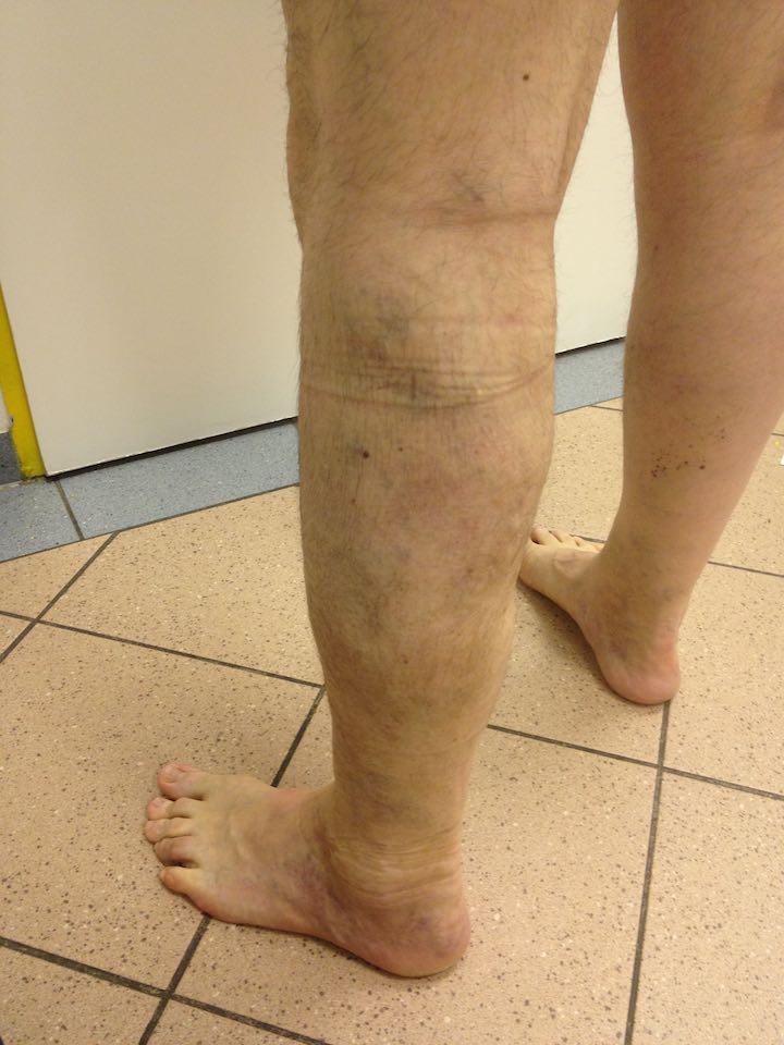 láb kezelés visszér műtét után