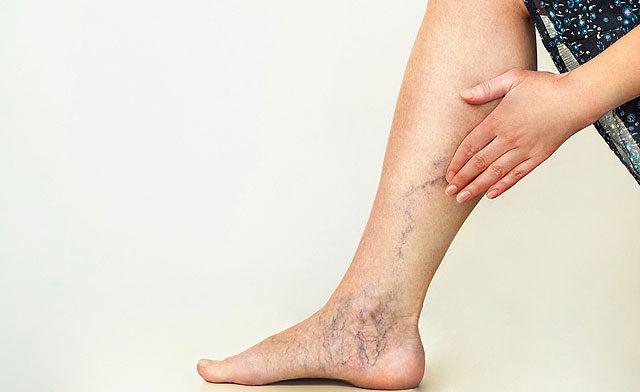 a comb és az alsó láb visszérje